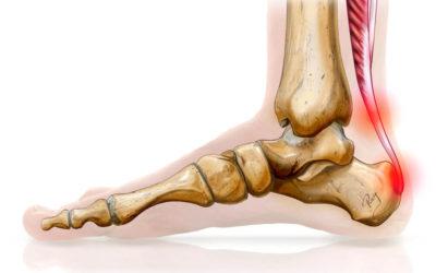 Les douleurs du tendon d'Achille et la course à pied